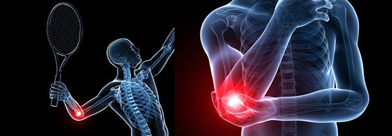 NE Philadelphia, PA - Tennis Elbow Treatment, Therapy and Pain Relief by Chiropractor, Dr in NE Philadelphia, PA  19114 19115 19116 19136